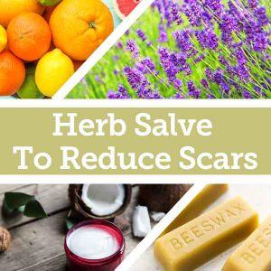 Baldwins Remedy Creator - Herbal Salve To Reduce Scars